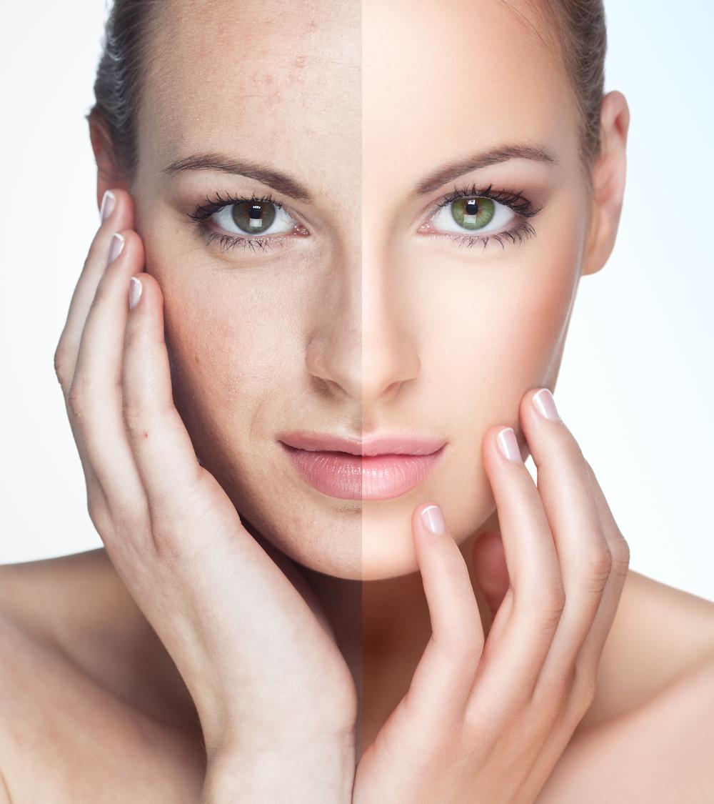 Detox für die Haut: die 3 besten Tipps gegen Hautunreinheiten