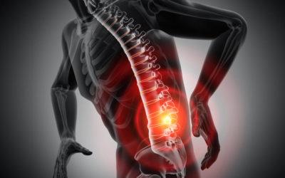 Nie wieder Rücken- und Gelenkschmerzen!